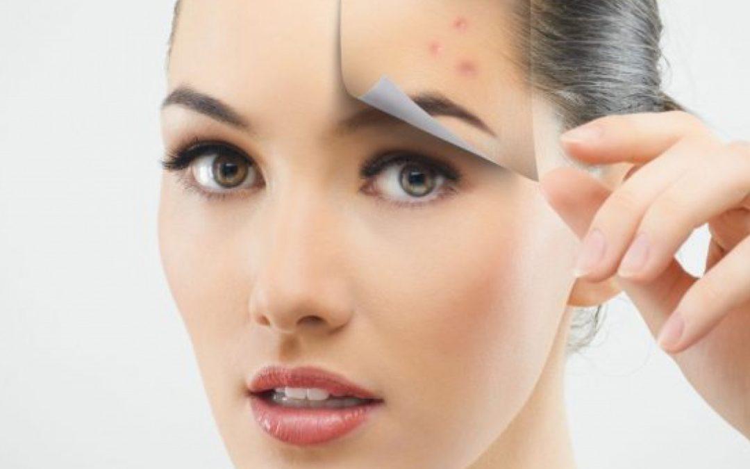 Blizny na twarzy – od czego mogą być spowodowane?
