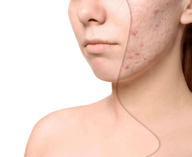 Komplikacje przy powstawaniu blizn i jak im zapobiegać