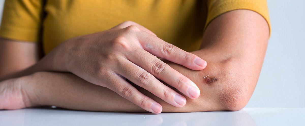 Zdrapywanie strupów a blizny