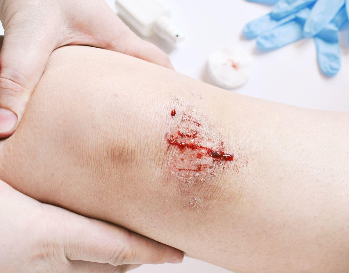 unikanie urazów mechanicznych ran