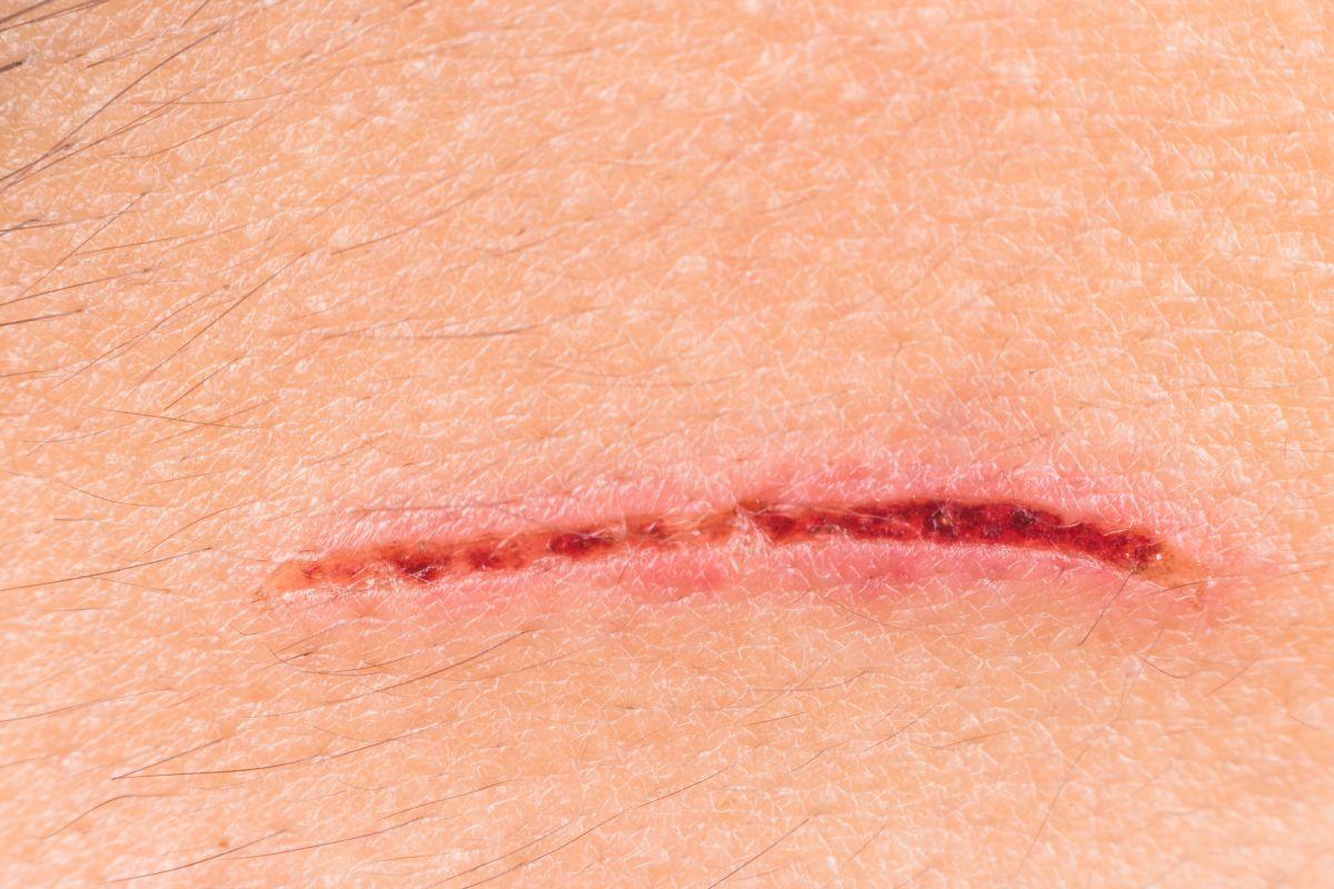 wsparcie gojenia ran