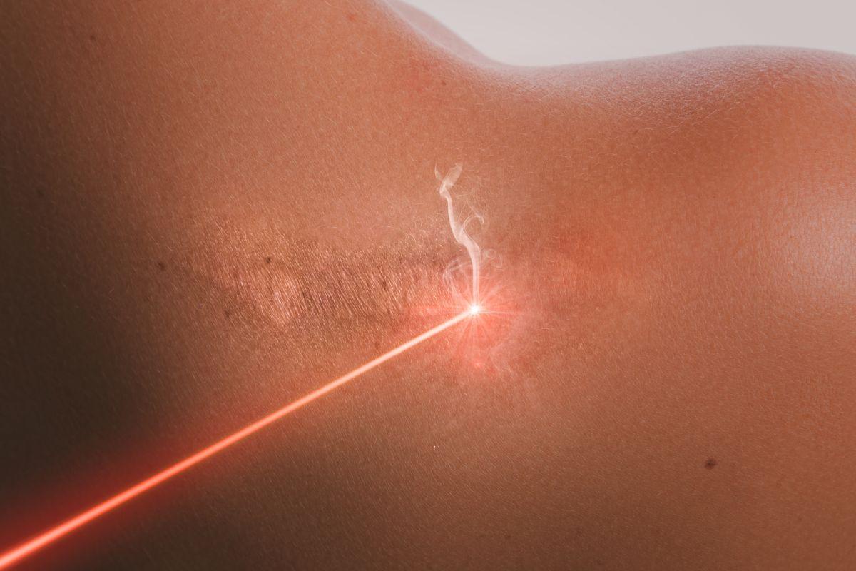 wady laseru na blizny