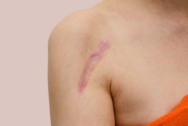 na czym polega ziarninowanie rany
