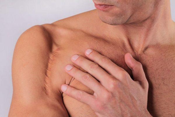 na co uważać przy pielęgnacji rany