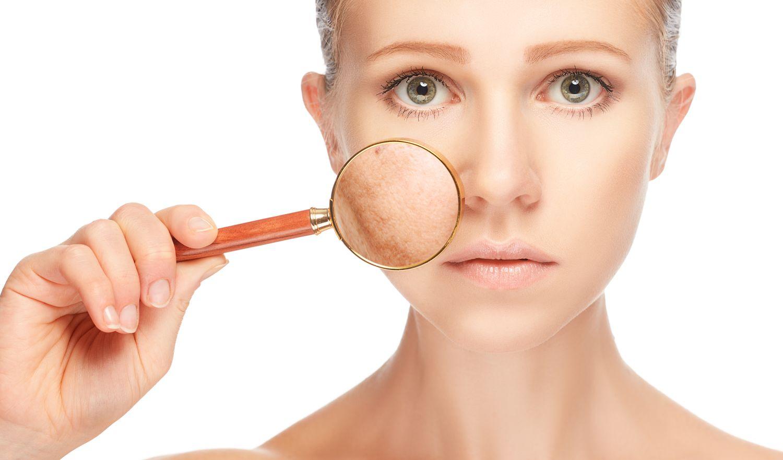 Jak usunąć stare blizny na twarzy?